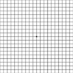 An Amsler Grid